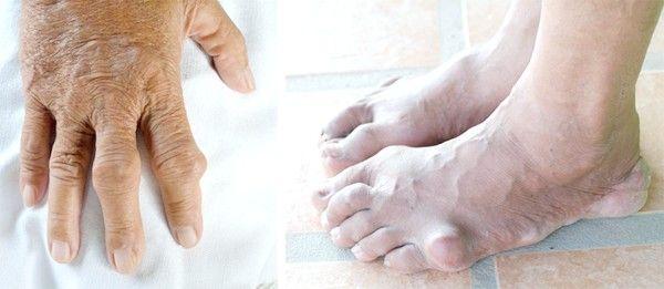 Сечова кислота в крові підвищена: причини симптоми і лікування
