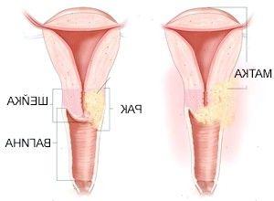 Рак шийки матки: симптоми і кольпоскопія для обстеження клітин